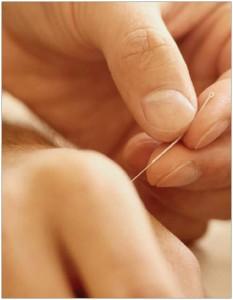 acupuncture_pfuk